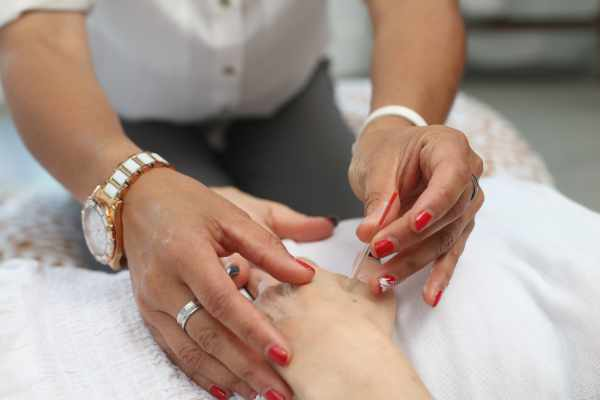 Acupuncture Near Solihull